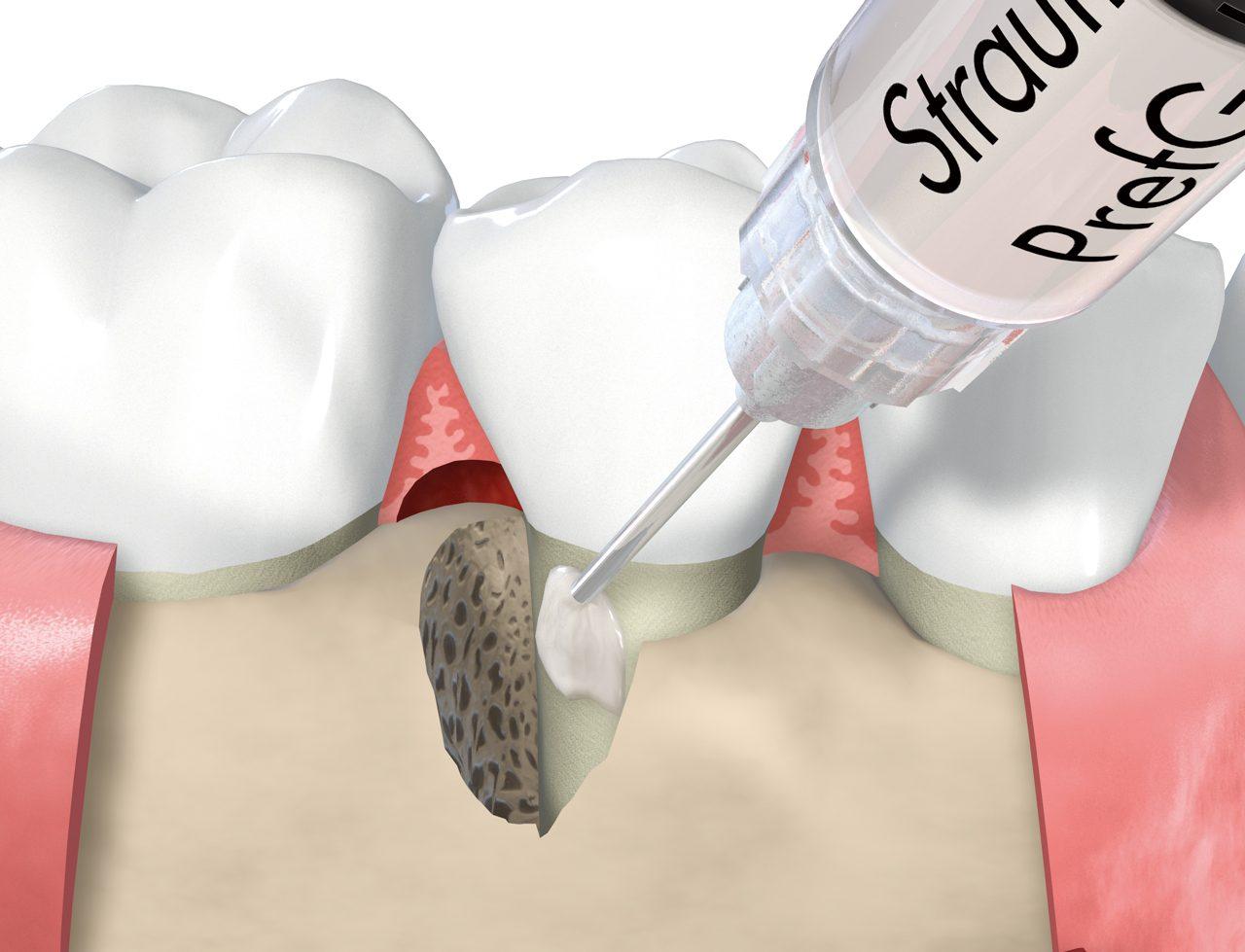 エムドゲインを用いた歯周組織再生療法